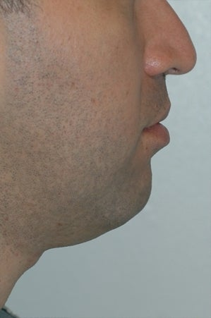 Chin augmentation, neck liposuction and neck muscle tightening. before 277315