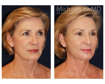 Lower Face and Neck Lift before 355091