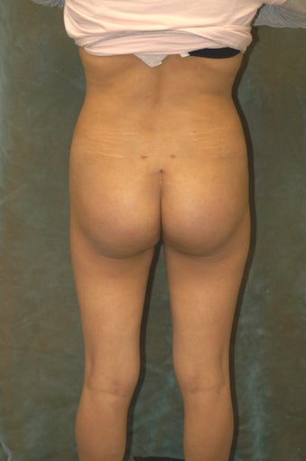 Women's Buttocks Augmentation   518149