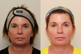 Ultherapy Lower Face after 536671