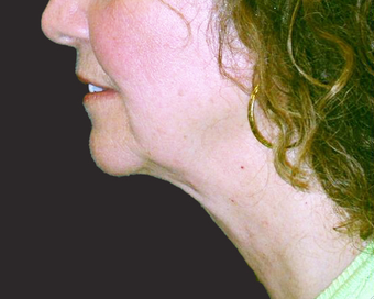 Neck Lift after 229650