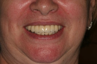 Full Mouth reconstruction, Smile makeover after 559122