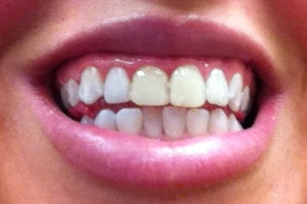 Zoom Whitening after 634706