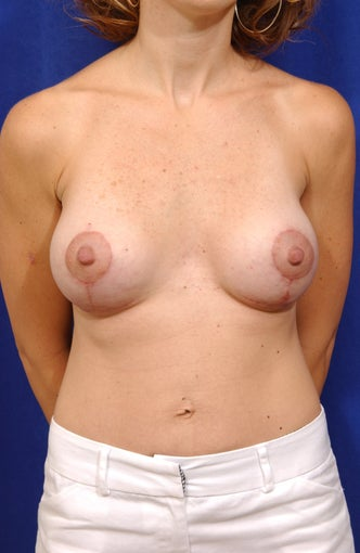 Breast lift with saline implants after 57021