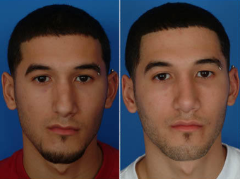 Nose Surgery (Revision Rhinoplasty) before 333096