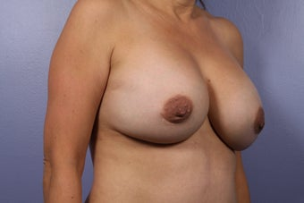 Breast Implants  after 302549