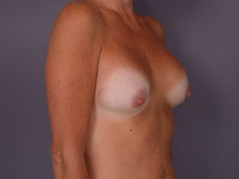 Breast Lift / Breast Augmentation before 291102