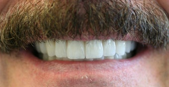 Full mouth rehabilitation using  20 implants to restore 28 teeth after 112629