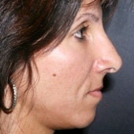 Revision Rhinoplasty after 442996