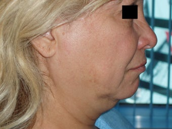 Mini Lift under local anesthesia 526732