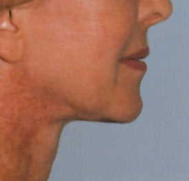 Neck Lift after 91877