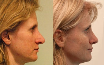 Open revision Rhinoplasty with auricular grafting after 471368