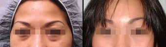 Endoscopic Brow Lift + Lower Eyelid before 649397