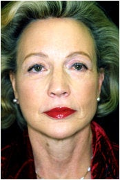 Facelift, Endoscopic Forehead Lift, Quadrilateral Blepharoplasty after 205341