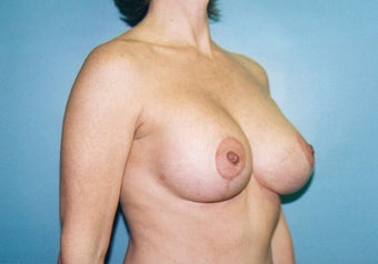Vertical Mastopexy (Breast Lift) w/ Saline Implants after 247612
