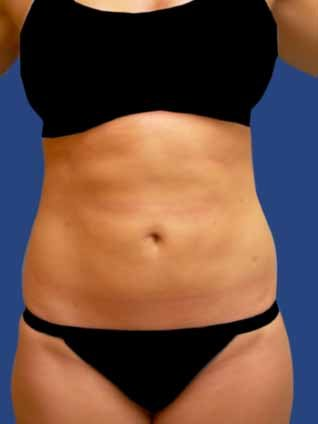 Abdomen Liposuction after 513389