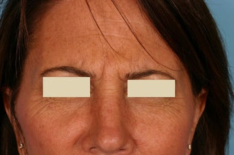 Frown lines treatment before 88694