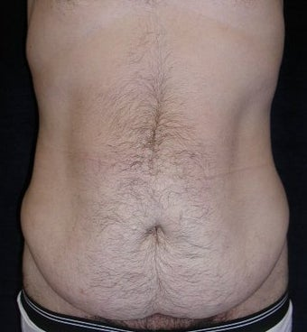 Male tummy Tuck before 578190