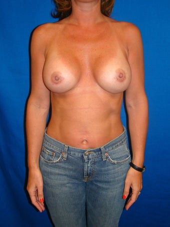 Breast Augmentation Revision after 75974