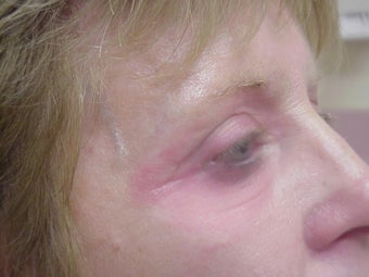 Eyelid surgery with CO2 laser resurfacing after 140083