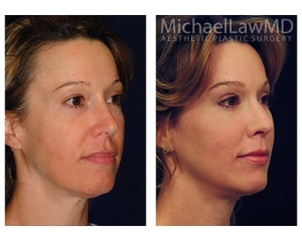 Chin Liposuction after 395361