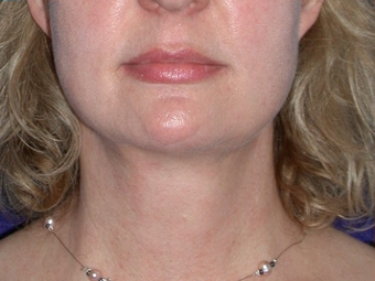 Necklift after 208455