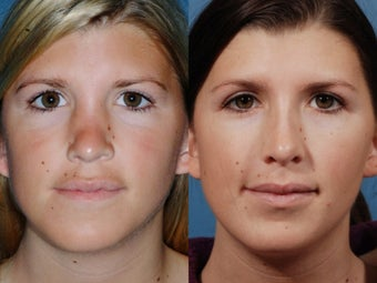 Revision rhinoplasty before 436945