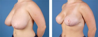 Breast Reduction 355748