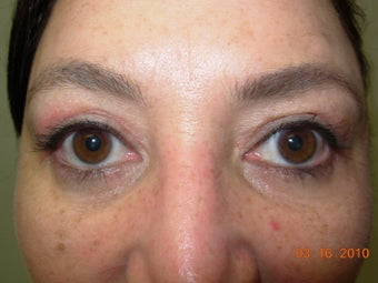 Blepharoplasty after 340077
