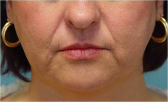Radiesse injection nasolabial folds and marionette lines before 255551