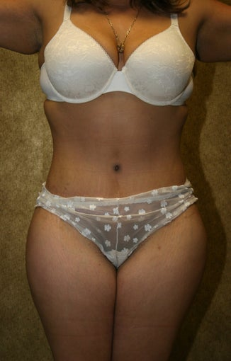 tummy tuck after 304677