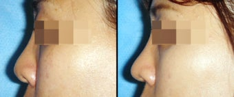 Rhinoplasty before 650754
