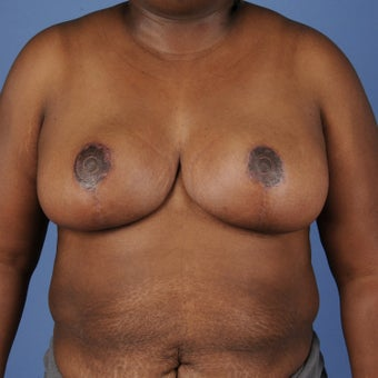Breast Reduction after 352964