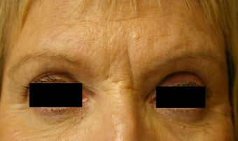 Botox & Restylane - Glabella  before 410982