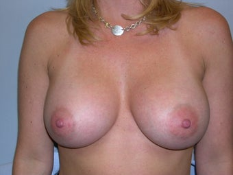 Breast augmentation after 237169