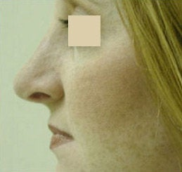 Nose Reshaping (Rhinoplasty) after 141544