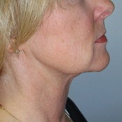 Liposuction Neck after 203953