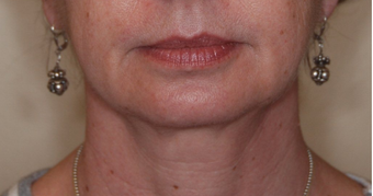 Ultherapy after 460347