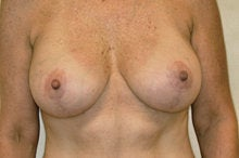Full Mastopexy Breast Augmentation after 244755