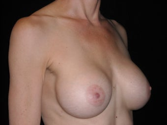 Breast augmentation 381904