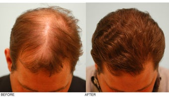 Hair Transplant after 137287