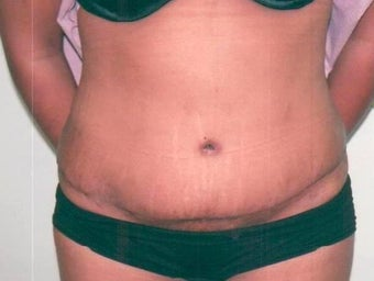 Abdominoplasty after 238220