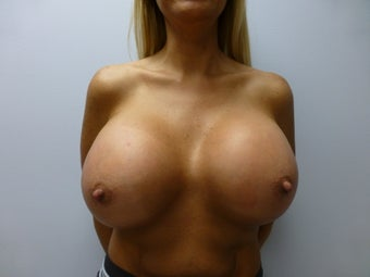 Very large breast implants after 591053