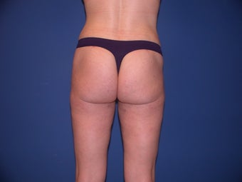 Liposuction after 199090