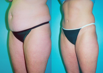 Tummy Tuck with Liposuction before 259567