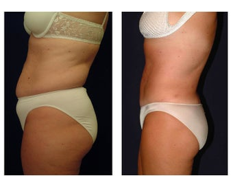 Tummy Tuck / Abdominoplasty before 55009