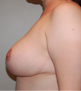 Vertical Breast Lift after 275507