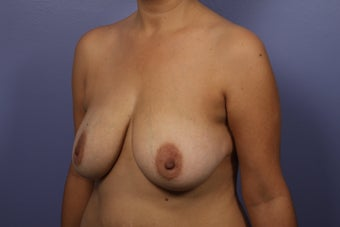 Breast Augmentation before 467223