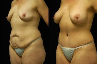 Tummy Tuck and Breast Augmentation, gel implants after 392054