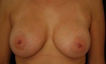 Breast Augmentation after 483512